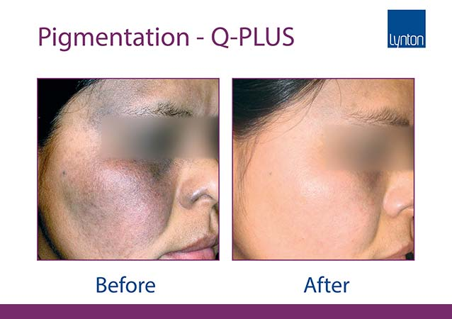 Pigmentation Removal Before & After