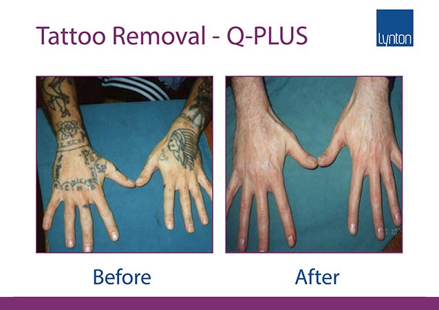 Tattoo Removal from Hands Before & After