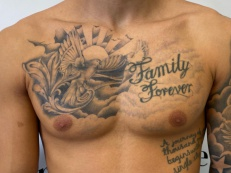 Tatto Removal - After